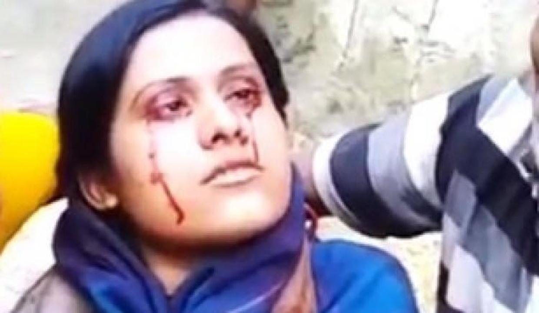 Kocası kan terleyen eşini 'cadı' diye terk etti