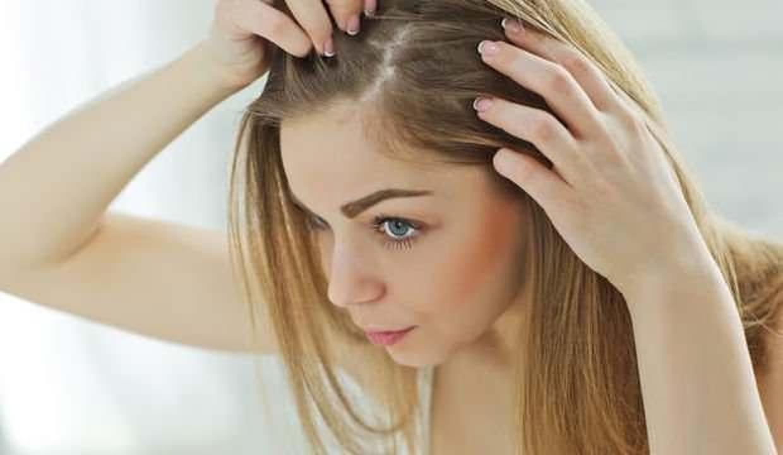 Saçları kepeklerden arındırmak için bilmediğiniz 5 yöntem