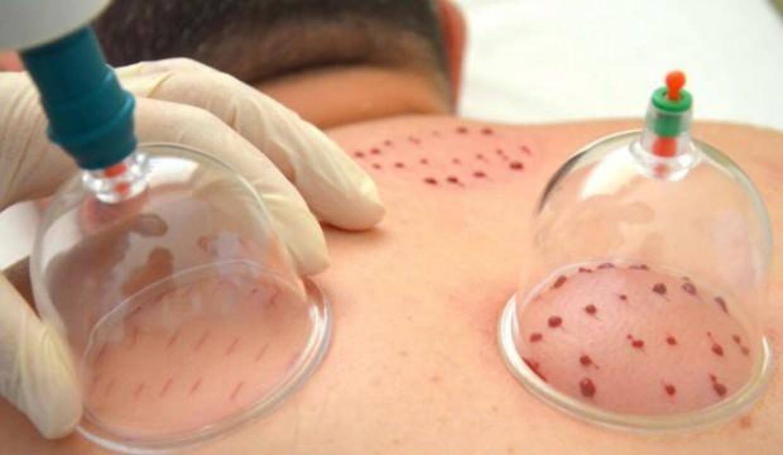 Nöroloji Uzmanı Dr. Suzan Üstün: Kovid-19'dan korunmak için hacamat tedavisi yapılabilir