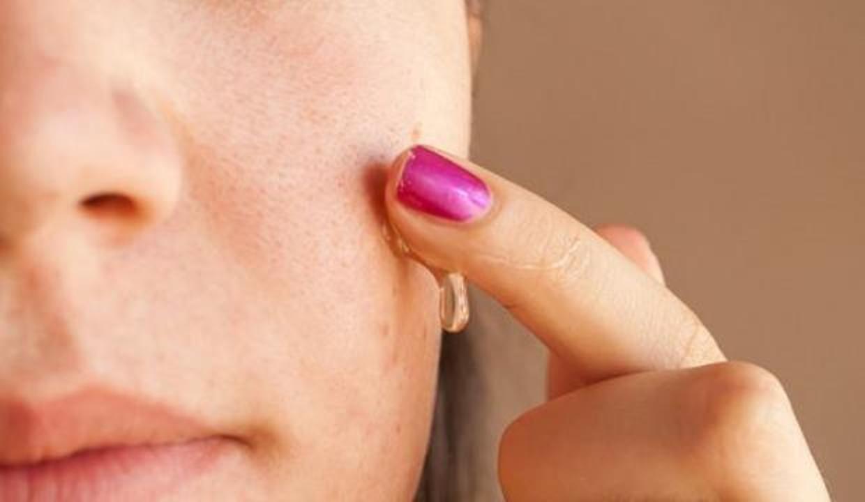 Sivilce izleri nasıl geçer? Sivilce patlatmak zararlı mı? Sivilce izlerine doğal tedavi yöntemi