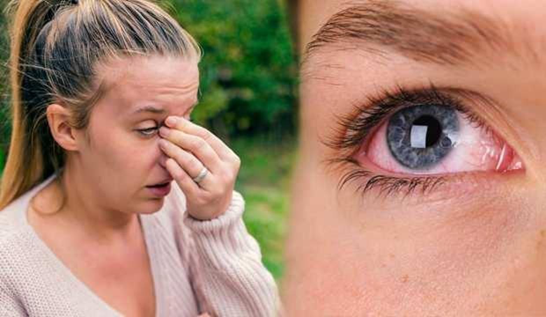 Göz alerjisine ne iyi gelir?