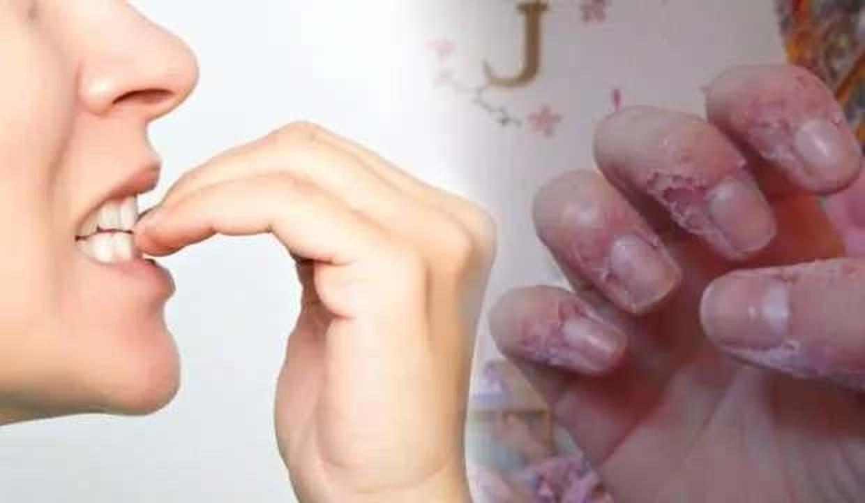 Tırnak yeme hastalığı olanlar dikkat! Koronavirüs riskini arttırıyor