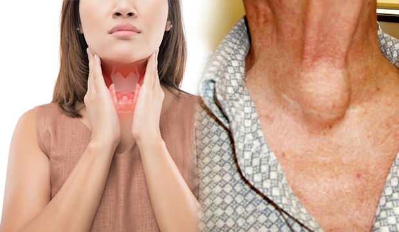 Tiroid hastalığı belirtilerine karşı dikkatli olun!