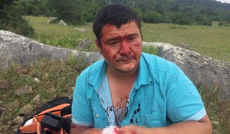 Anadolu Yayıncılar Derneği'nden İHA muhabirine yapılan saldırıya kınama