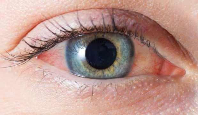 Şiddetli göz ağrısı kör olmanıza neden olabilir!