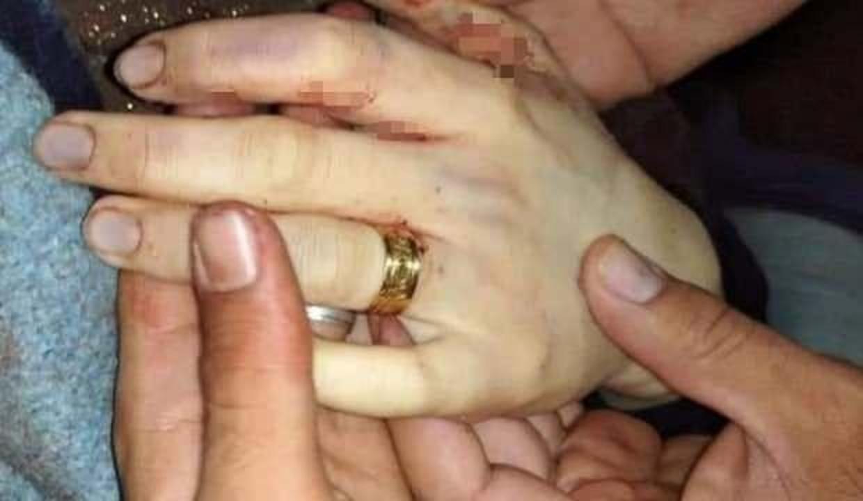 Suriyeli Meryem, düğününden 6 gün sonra rejim saldırılarında hayatını kaybetti