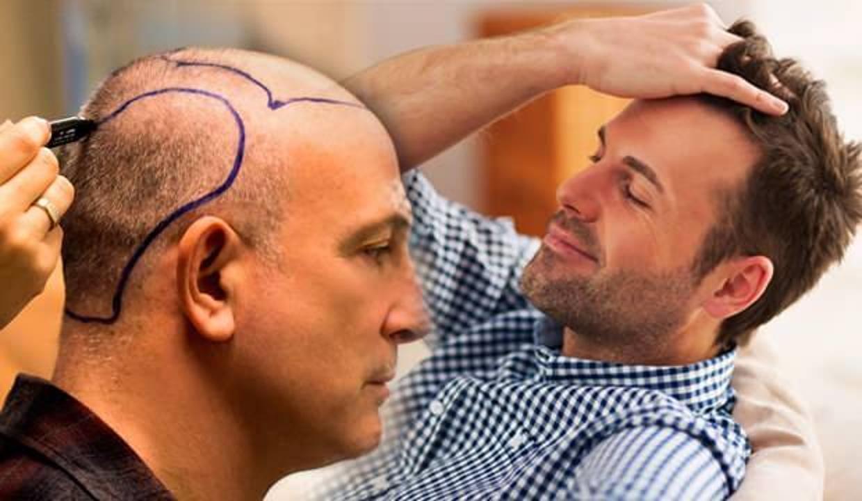 Saç ekimi öncesi saçlar kesilir mi? Saç ekimi sonrası yapılması gerekenler...